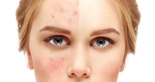 Acne and its treatment
